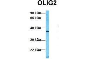 Image no. 5 for anti-Oligodendrocyte Lineage Transcription Factor 2 (OLIG2) (C-Term) antibody (ABIN2777566)