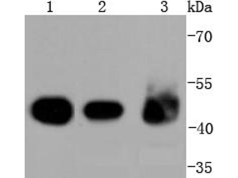 Western Blotting (WB) image for anti-Keratin 18 (KRT18) antibody (ABIN5557298)