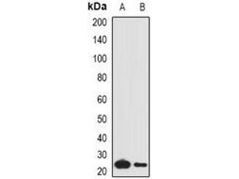 Western Blotting (WB) image for anti-C1QA antibody (Complement Component 1, Q Subcomponent, A Chain) (ABIN3197606)