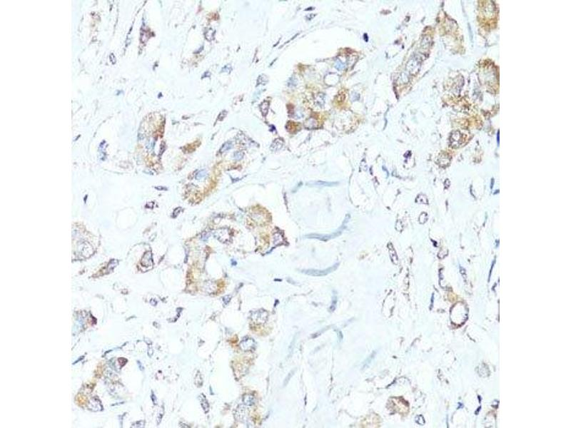 Immunohistochemistry (Paraffin-embedded Sections) (IHC (p)) image for anti-BCL2-Associated X Protein (BAX) antibody (ABIN6137453)