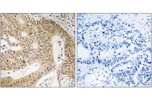 Image no. 1 for anti-Death-Associated Protein (DAP) (AA 11-60) antibody (ABIN1534404)