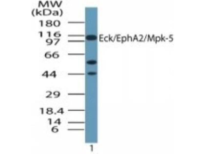 Western Blotting (WB) image for anti-EPH Receptor A2 antibody (EPHA2) (ABIN4308662)