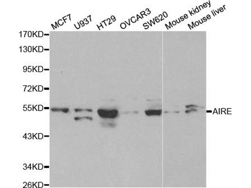 Western Blotting (WB) image for anti-Autoimmune Regulator (AIRE) antibody (ABIN2990292)