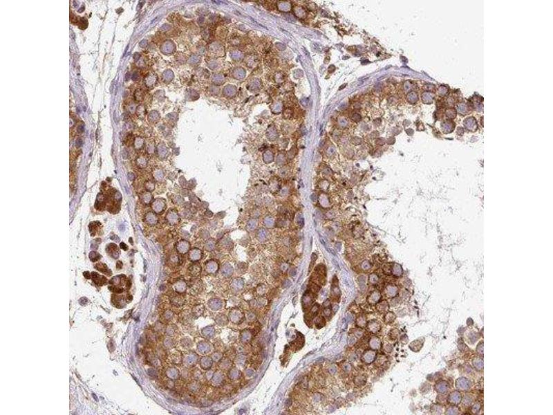 Immunohistochemistry (IHC) image for anti-Cytochrome P450, Family 20, Subfamily A, Polypeptide 1 (CYP20A1) antibody (ABIN4301724)