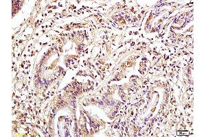 Immunohistochemistry (IHC) image for anti-Mitogen-Activated Protein Kinase Kinase Kinase 8 (MAP3K8) (AA 370-420), (pSer400) antibody (ABIN746573)