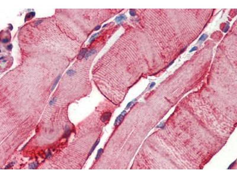 Immunohistochemistry (Paraffin-embedded Sections) (IHC (p)) image for anti-Heat Shock 27kDa Protein 1 (HSPB1) antibody (ABIN462101)