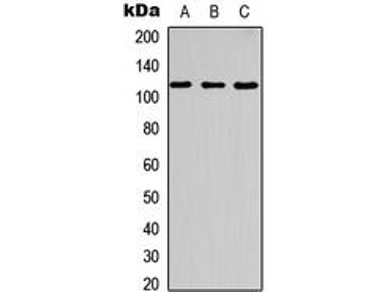 Western Blotting (WB) image for anti-Cas-Br-M (Murine) Ecotropic Retroviral Transforming Sequence (CBL) (C-Term), (pTyr700) antibody (ABIN2704545)