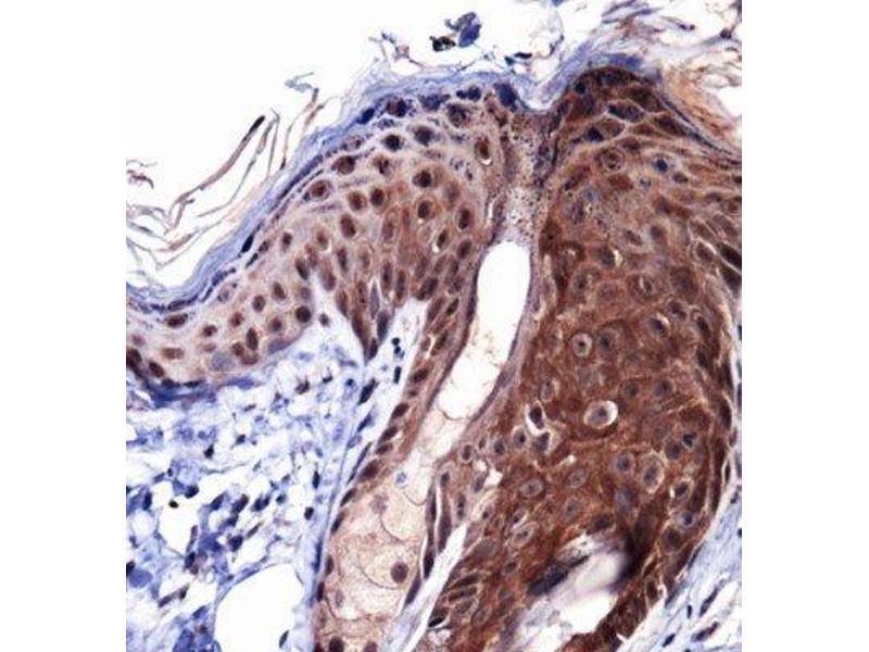 Immunohistochemistry (IHC) image for anti-Collagen, Type I, alpha 1 (COL1A1) (AA 150-200), (Internal Region) antibody (ABIN4299589)