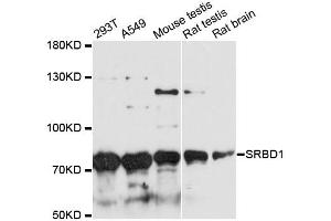 Image no. 1 for anti-S1 RNA Binding Domain 1 (SRBD1) antibody (ABIN6567833)