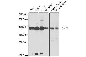 Image no. 1 for anti-Ring Finger Protein 2 (RNF2) antibody (ABIN6147029)