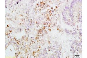 Immunohistochemistry (Paraffin-embedded Sections) (IHC (p)) image for anti-Integrin beta 3 (ITGB3) (AA 27-77) antibody (ABIN739029)