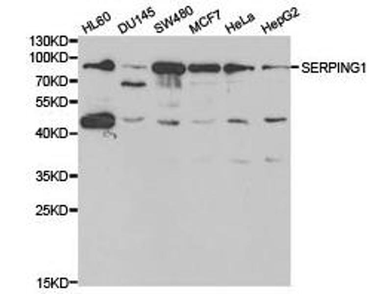 Western Blotting (WB) image for anti-SERPING1 antibody (Serpin Peptidase Inhibitor, Clade G (C1 Inhibitor), Member 1) (ABIN1874741)