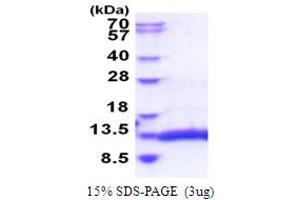 Image no. 1 for Selenoprotein W, 1 (SEPW1) (AA 1-87) protein (His tag) (ABIN5853879)