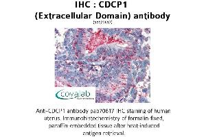 Image no. 2 for anti-CUB Domain Containing Protein 1 (CDCP1) (Extracellular Domain) antibody (ABIN1732916)