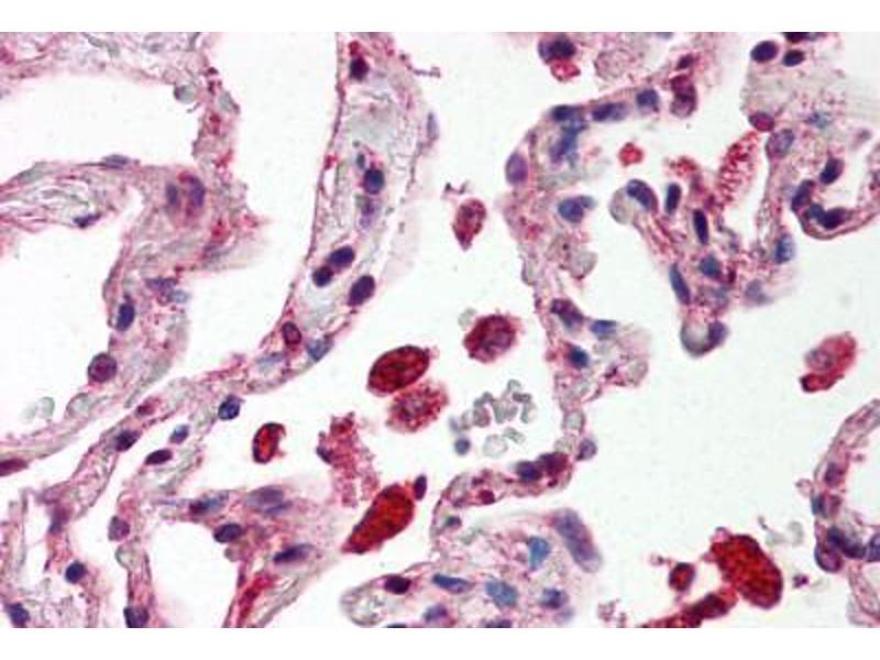 Immunohistochemistry (IHC) image for anti-Signal Transducer and Activator of Transcription 1, 91kDa (STAT1) (C-Term) antibody (ABIN214518)