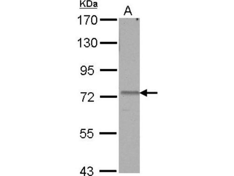 Western Blotting (WB) image for anti-Autocrine Motility Factor Receptor (AMFR) (Center) antibody (ABIN4280243)