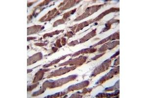 Immunohistochemistry (Paraffin-embedded Sections) (IHC (p)) image for anti-Pseudouridylate Synthase 1 (PUS1) (AA 329-358), (C-Term) antibody (ABIN954388)