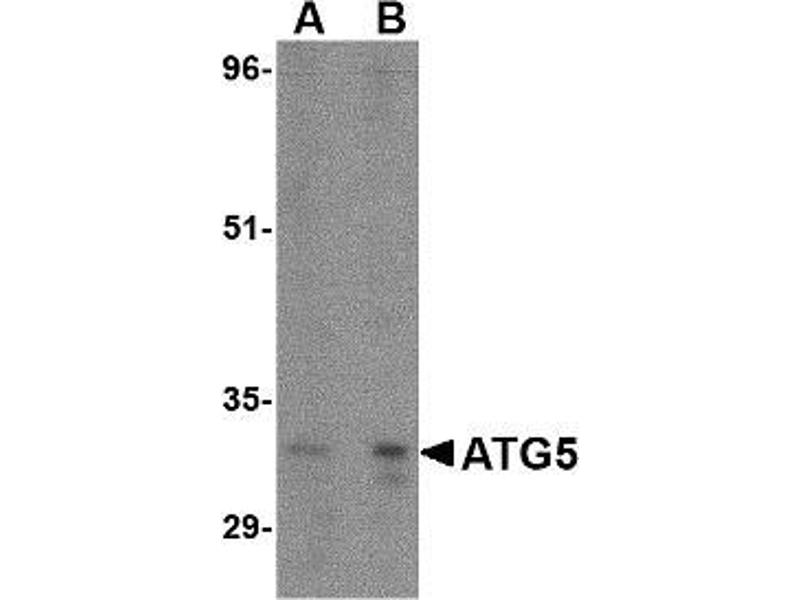 Western Blotting (WB) image for anti-ATG5 antibody (ATG5 Autophagy Related 5 Homolog (S. Cerevisiae)) (N-Term) (ABIN497966)