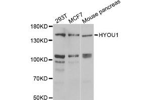 Image no. 1 for anti-Hypoxia Up Regulated 1 (HYOU1) antibody (ABIN6570576)