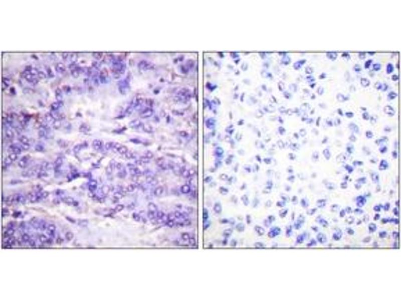 Immunohistochemistry (IHC) image for anti-MDM2 Antikörper (Mdm2, p53 E3 Ubiquitin Protein Ligase Homolog (Mouse)) (pSer166) (ABIN1531340)