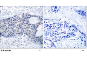 image for anti-ZAP70 antibody (zeta-Chain (TCR) Associated Protein Kinase 70kDa) (pTyr493) (ABIN196887)