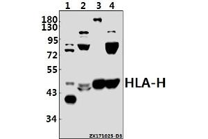 Image no. 1 for anti-Major Histocompatibility Complex, Class I, H (Pseudogene) (HLA-H) (AA 72-126) antibody (ABIN6713514)