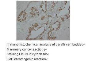 Immunohistochemistry (Paraffin-embedded Sections) (IHC (p)) image for anti-PKC alpha antibody (Protein Kinase C, alpha) (C-Term) (ABIN1108731)