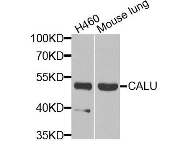 Image no. 1 for anti-Calumenin (CALU) antibody (ABIN2561545)