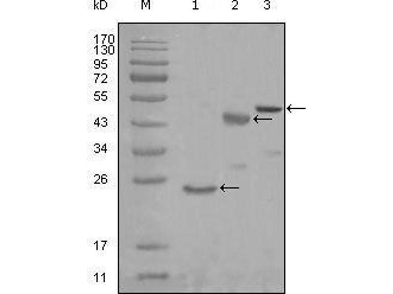 Western Blotting (WB) image for anti-Lysyl-tRNA Synthetase (KARS) (AA 90-174) antibody (ABIN969226)
