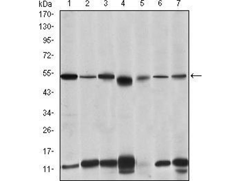 Western Blotting (WB) image for anti-Interleukin-1 Receptor-Associated Kinase 4 (IRAK4) antibody (ABIN969218)