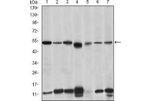 Western Blotting (WB) image for anti-IRAK4 antibody (Interleukin-1 Receptor-Associated Kinase 4) (ABIN969218)