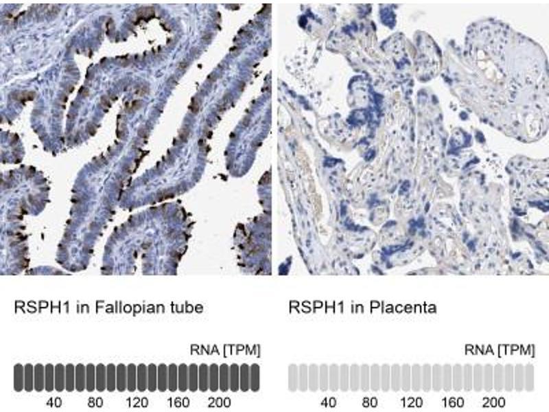 Immunohistochemistry (Paraffin-embedded Sections) (IHC (p)) image for anti-Radial Spoke Head 1 Homolog (Chlamydomonas) (RSPH1) antibody (ABIN4363101)