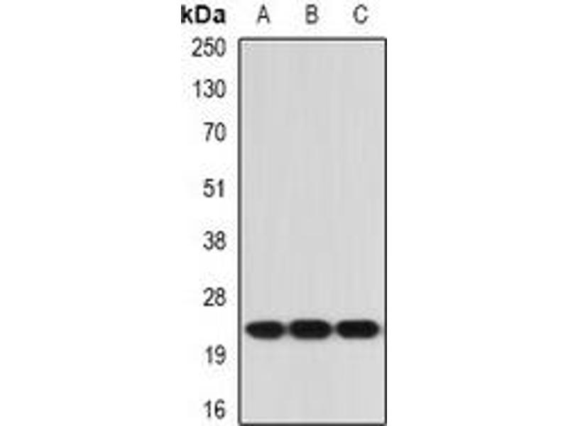Western Blotting (WB) image for anti-IL21 antibody (Interleukin 21) (ABIN3198158)