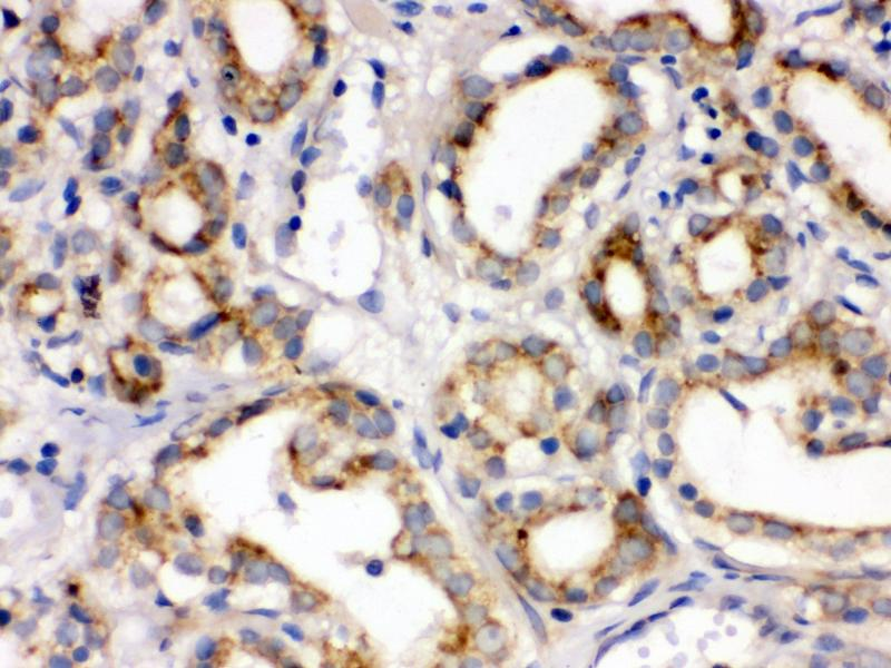 Immunohistochemistry (Paraffin-embedded Sections) (IHC (p)) image for anti-Frizzled Family Receptor 1 (Fzd1) (AA 369-400), (C-Term) antibody (ABIN3042412)