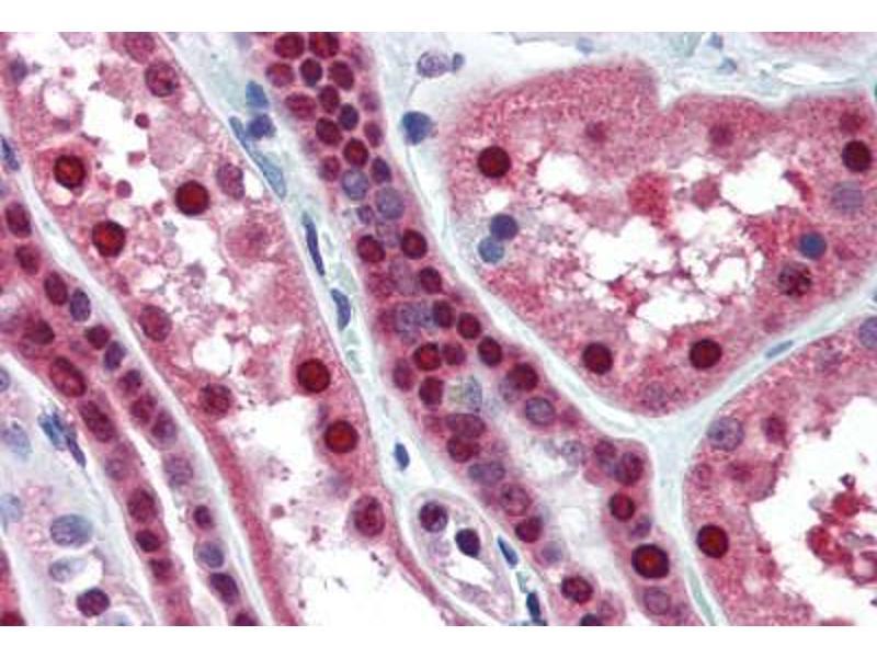 Immunohistochemistry (Paraffin-embedded Sections) (IHC (p)) image for anti-Methionine Adenosyltransferase II, alpha (MAT2A) (AA 1-395) antibody (ABIN364446)