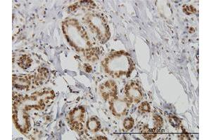 Immunohistochemistry (Paraffin-embedded Sections) (IHC (p)) image for anti-IL15 antibody (Interleukin 15) (full length) (ABIN393650)