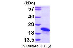 Image no. 1 for ADP-Ribosylation Factor-Like 2 Binding Protein (ARL2BP) (AA 1-163) protein (His tag) (ABIN667251)