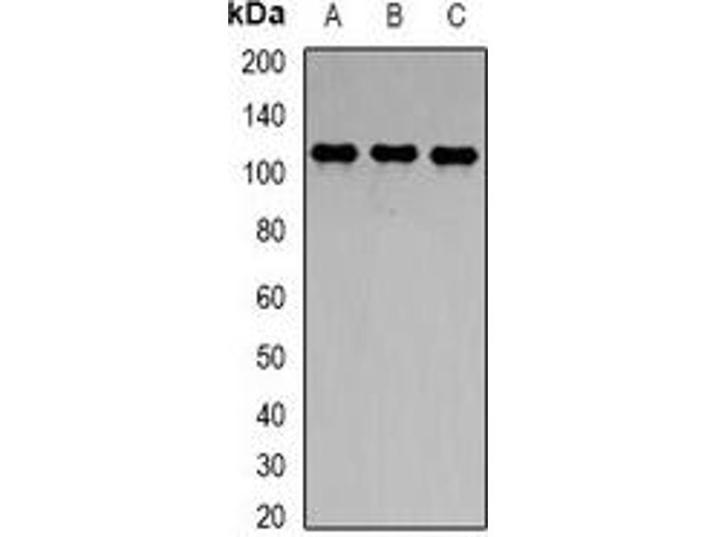 Western Blotting (WB) image for anti-Toll-Like Receptor 8 (TLR8) antibody (ABIN2966509)
