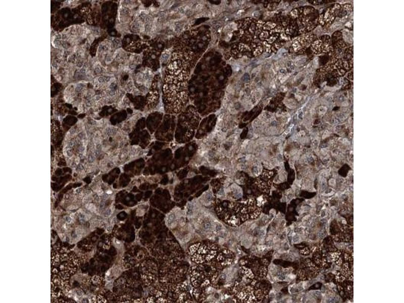 Immunohistochemistry (IHC) image for anti-Aminolevulinate, delta-, Synthase 1 (ALAS1) antibody (ABIN4279106)