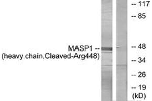 Western Blotting (WB) image for anti-Mannan-Binding Lectin serine Peptidase 1 (C4/C2 Activating Component of Ra-Reactive Factor) (MASP1) (Cleaved-Arg448), (AA 399-448) antibody (ABIN1536127)