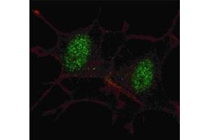Image no. 4 for anti-SMAD, Mothers Against DPP Homolog 2 (SMAD2) (AA 97-125) antibody (ABIN3032613)