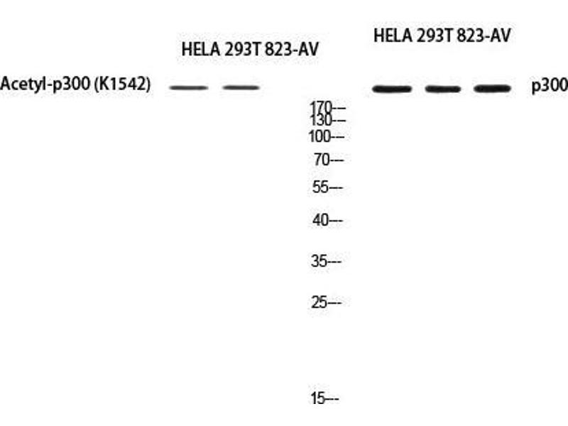 Western Blotting (WB) image for anti-E1A Binding Protein P300 (EP300) antibody (ABIN3188089)