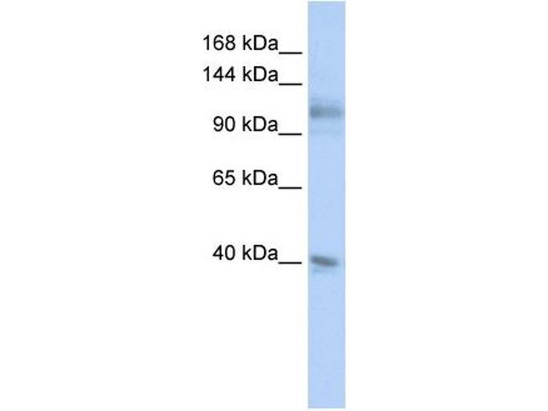Western Blotting (WB) image for anti-MSH2 (N-Term) antibody (ABIN2776761)