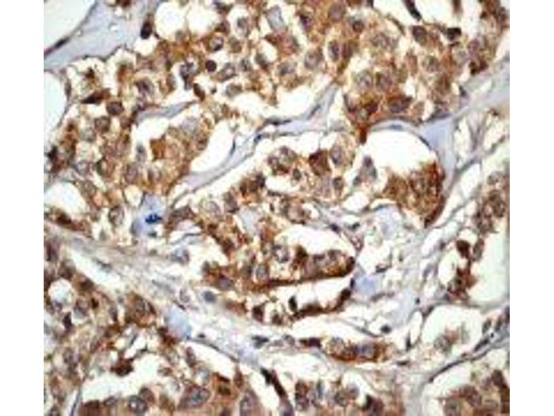 Immunohistochemistry (IHC) image for anti-Caspase 6 antibody (Caspase 6, Apoptosis-Related Cysteine Peptidase) (ABIN189207)