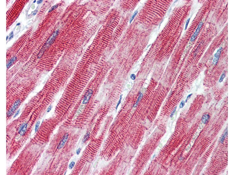 Immunohistochemistry (IHC) image for anti-TEA Domain Family Member 1 (SV40 Transcriptional Enhancer Factor) (TEAD1) (C-Term) antibody (ABIN462220)