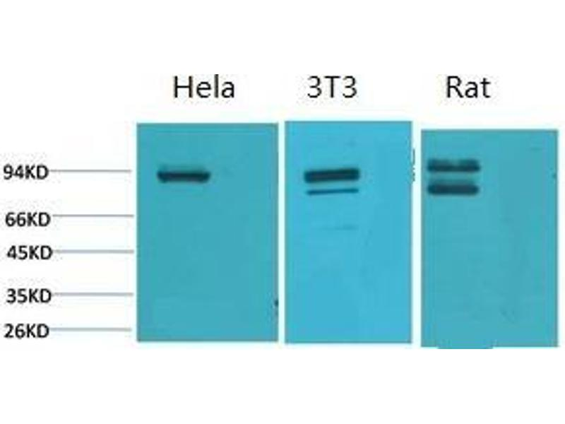 Image no. 2 for anti-Signal Transducer and Activator of Transcription 1, 91kDa (STAT1) antibody (ABIN3181580)
