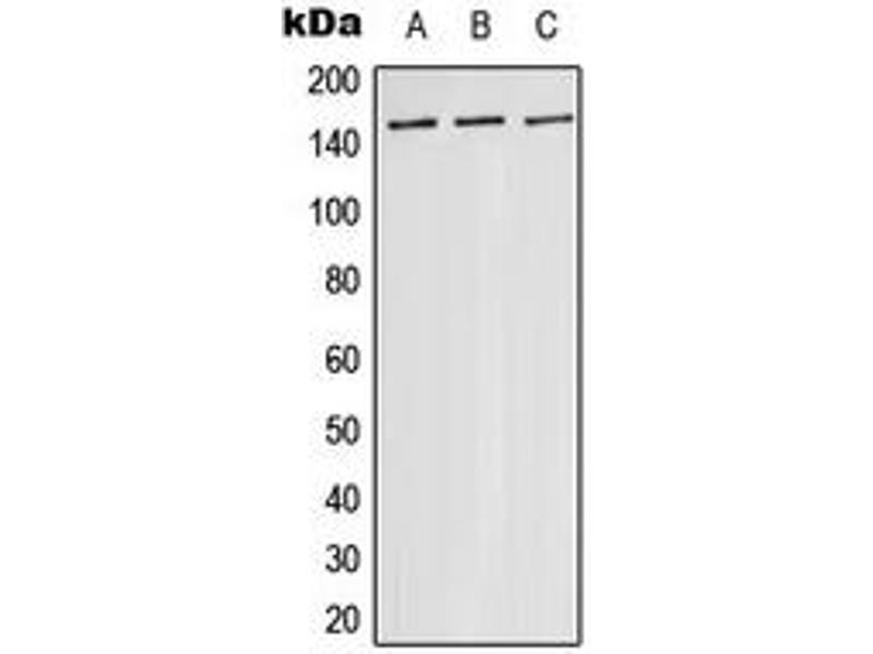 Western Blotting (WB) image for anti-Mitogen-Activated Protein Kinase Kinase Kinase 5 (MAP3K5) (Center) antibody (ABIN2705520)
