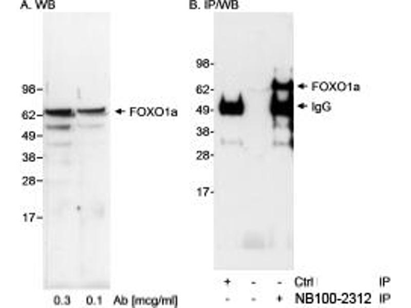 Western Blotting (WB) image for anti-Forkhead Box O1 (FOXO1) (C-Term) antibody (ABIN250693)