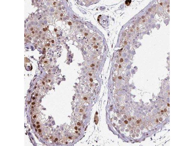 Immunohistochemistry (IHC) image for anti-ELK1 antibody (ELK1, Member of ETS Oncogene Family) (ABIN4307742)