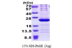 Image no. 1 for Ribosomal Protein L11 (RPL11) (AA 1-178) protein (His tag) (ABIN5853104)